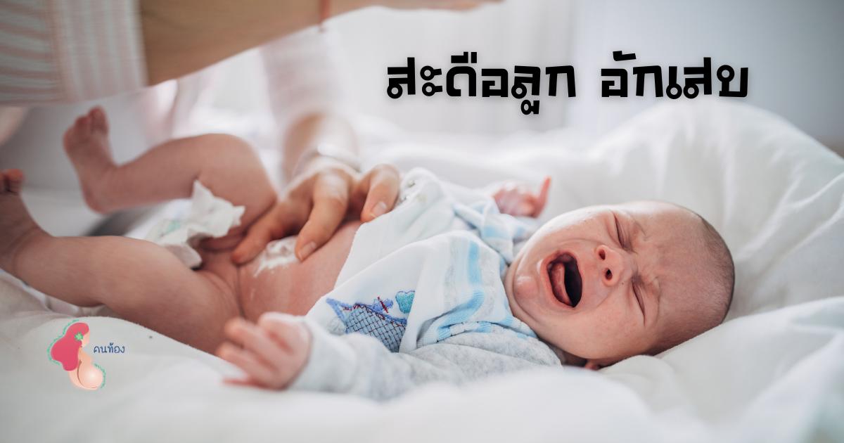สะดือทารกอักเสบ เป็นหนอง ความผิดปกติที่คุณแม่ไม่ควรมองข้าม